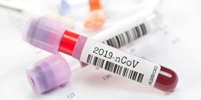 Serum Virus Test